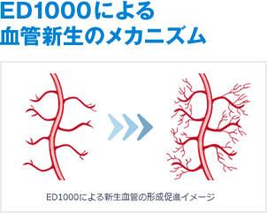 ED1000